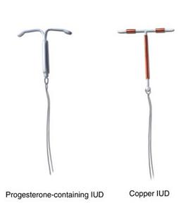 Copper-IUD-Progesterone-IUD